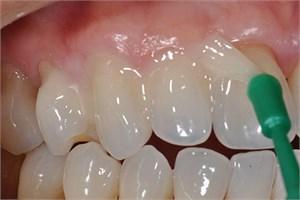 Фармако-стоматологические материалы