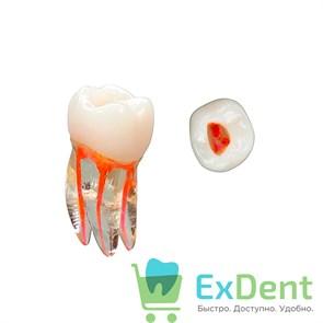 Тренировочный зуб - пластиковый зуб для эндодонтических тренировок