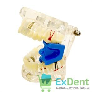Прикусной блок средний, для фиксации челюсти в открытом состоянии